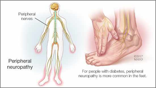 Diabetic Neuropathy LinkShare