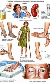 Image result for Neuropathy Symptoms
