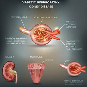 Image result for Diabetic Nephropathy